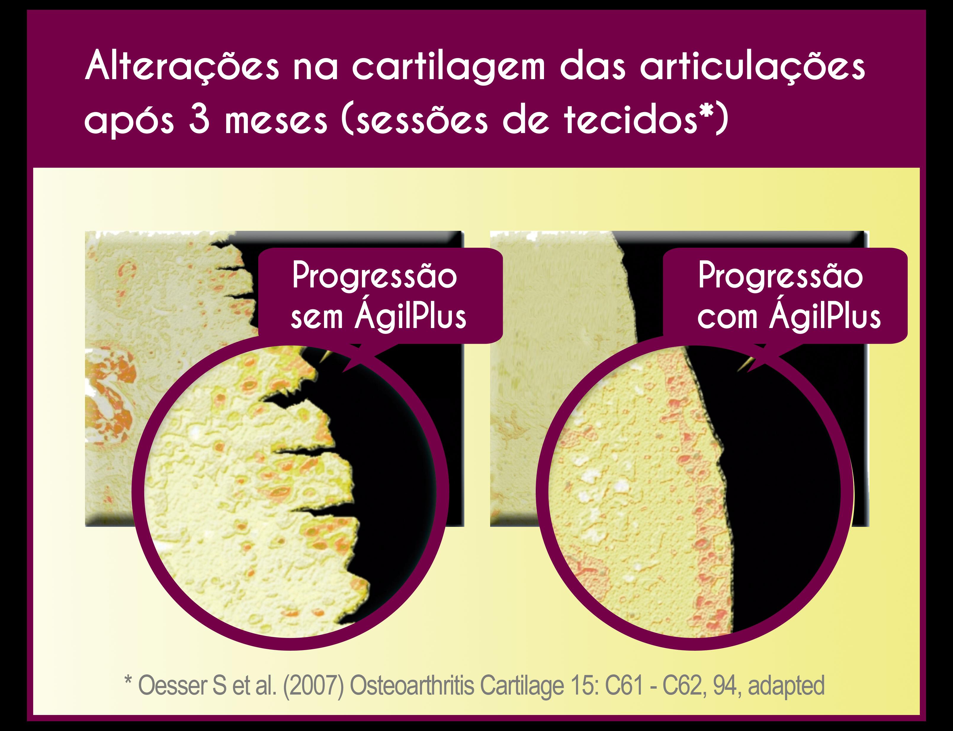 comparativo da progressão da cartilagem das articulações com agilplus (bom) e sem agilplus (ruim).