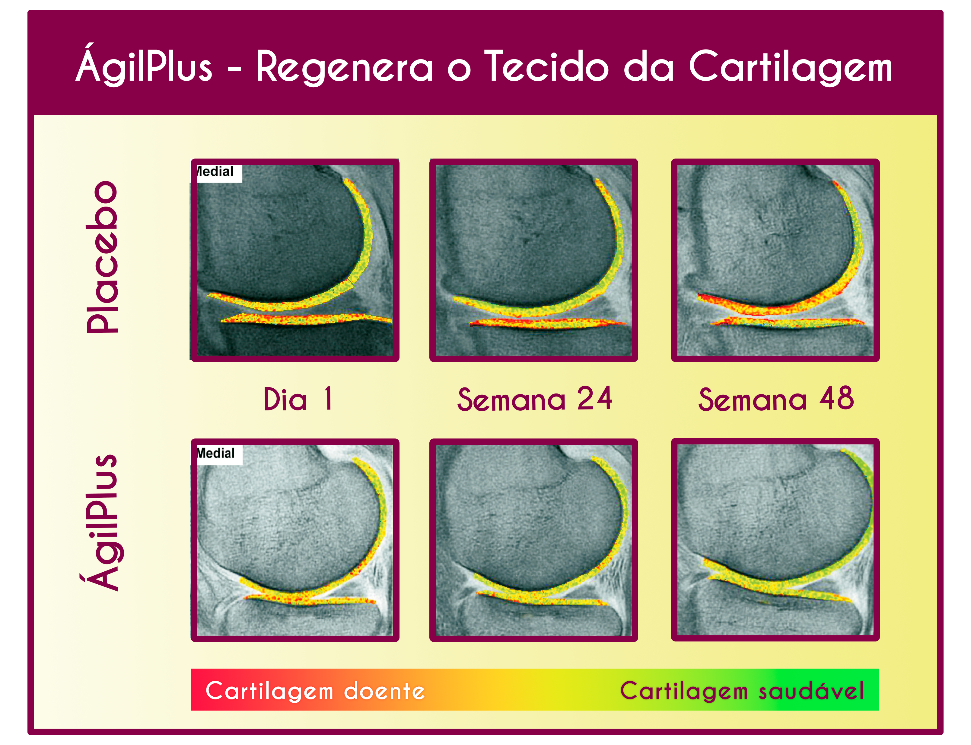 comparativo com escala de cor deregeneração do tecido com agilplus e sem agilplus