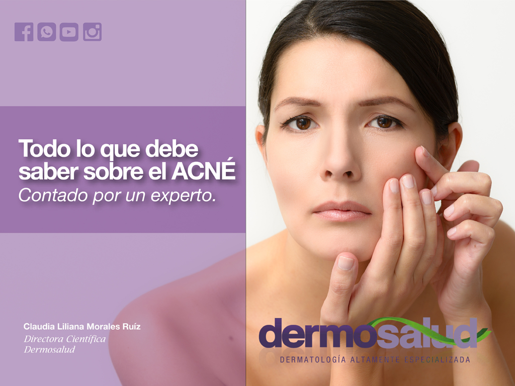 todo lo que debe saber del acne