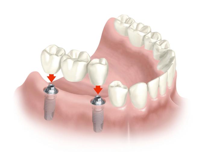 Vários implantes